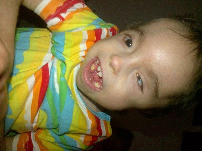 Image Result For Trisomy