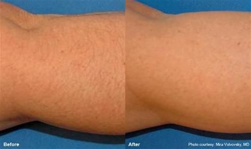 High quality yet cheap laser hair removal at urbana http www urbana