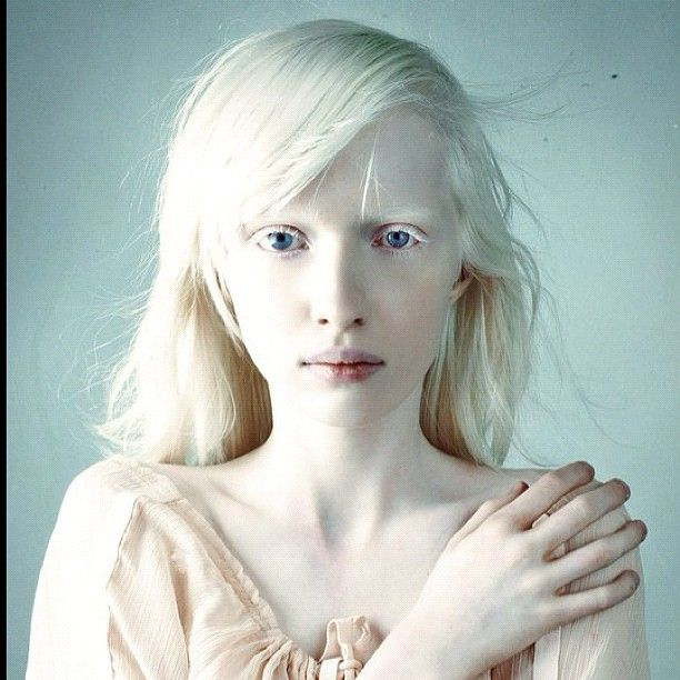Nastya Zhidkova Via Tumblr Albino Beauty Portrait Photography Pictures