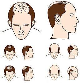 Hair Transplant Latest techniques | Hair Transplant in Dubai | Pinter ...