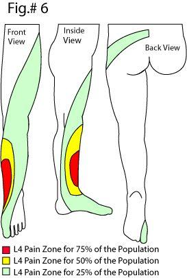 Exercises For Sciatica: Exercises For Sciatica L3-l4