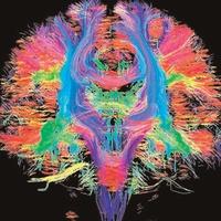 O Cérebro Nosso de Cada Dia - Galeria de imagens - Cérebrosvariados