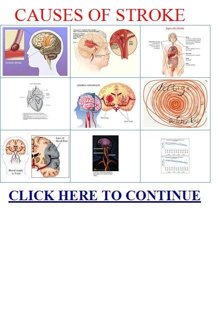 Improve memory power medicine photo 1