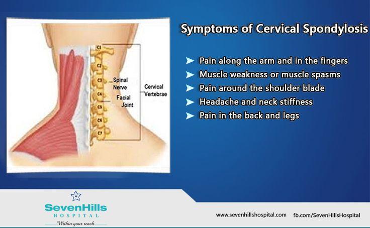 Cervical Spondylosis – Symptoms, Causes, Natural Treatments Exercises Tips
