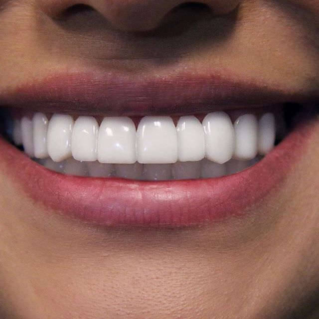 The Best Teeth Whiteners For A Perfect, Pearly-WhiteSmile recommendations