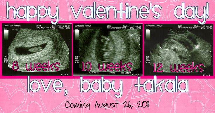 valentines day pregnancy surprise