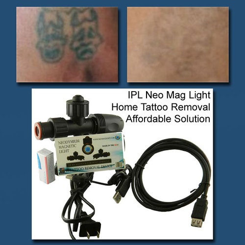 Affordable Home Tattoo Removal Device... Neo Mag Light Increases The . Great Pictures