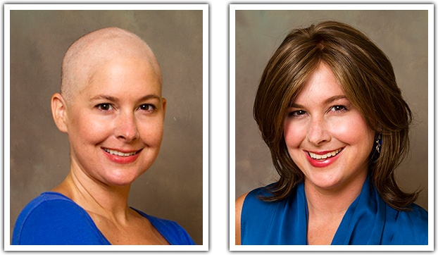 Before And After Chemo Makeover Look Good Feel Better