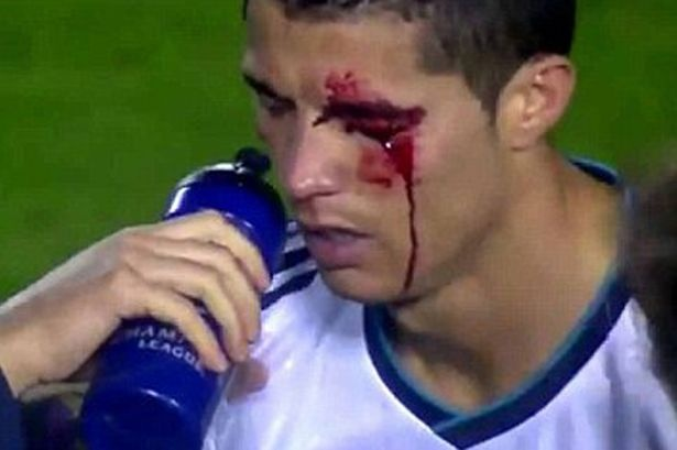 Cristiano Ronaldo's eye injury...Owww...