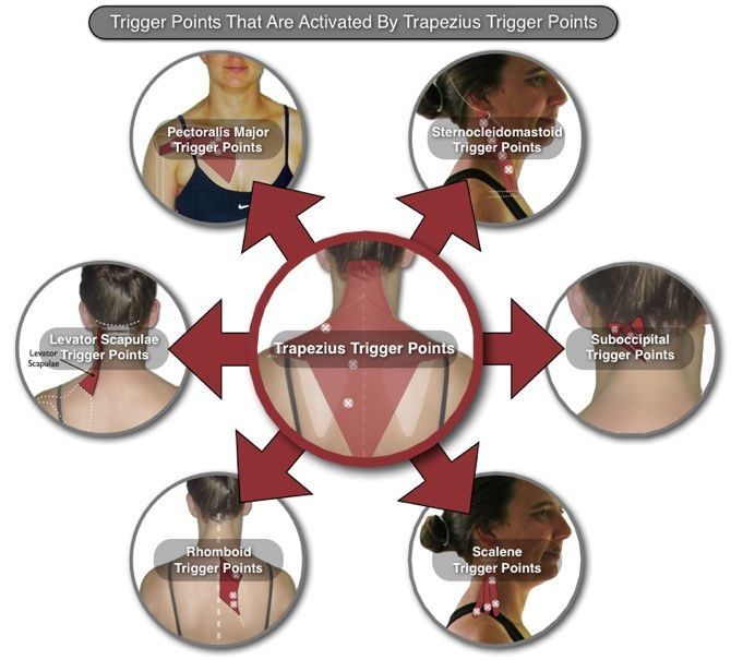 Trapezius trigger point interactions acupressure for shoulder