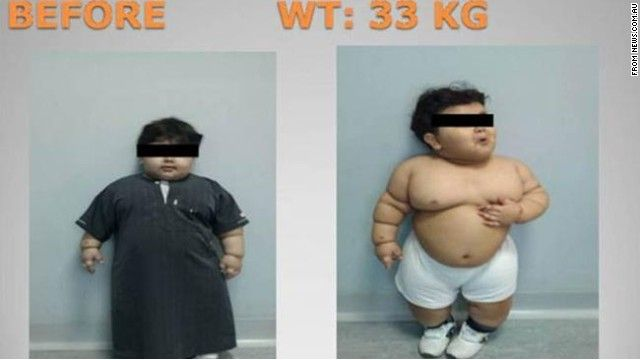How to lose belly fat diet pills image 4