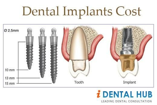 dental implant cost washington dc