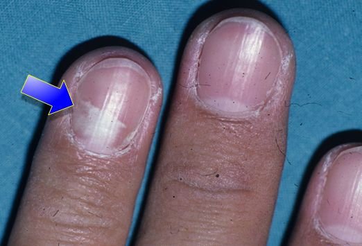 iron deficiency nails #11