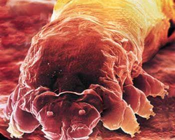 Microscopic Organisms Living In Your Eyelashes eyelash mites!! | Micr...