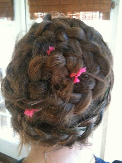 Braided Hairstyles To Hide Front Hair Line