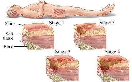 pancreatic cancer lymph node involvement prognosis