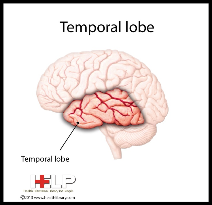 temporal lobe epilepsy Objectives: many patients thought to have temporal lobe epilepsy, are evaluated for surgical treatmentdecision-making in epilepsy surgery is a multidisciplinary, phased process involving complex diagnostic tests.