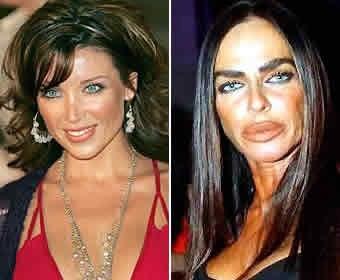 Socialite Michaela Romanini...Severe plastic surgery FAIL!!!