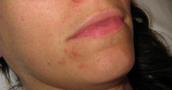 triamcinolone acetonide acne