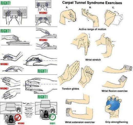 Carpal Tunnel Syndrome Exercises | Tips - Health | Pinterest