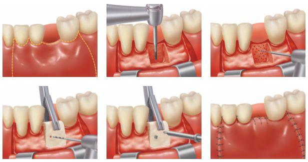 bone grafts in periodontics pdf