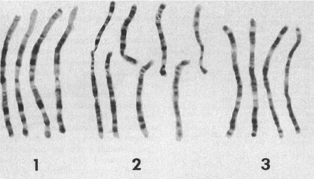Of chromosomes 2p and 2q accounts for the reduction of the 24 pairs