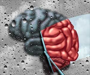 Brain Injury May Increase Risk of Alzheimer's Disease
