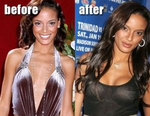 ... ://www.celeb-surgery.com/selita-ebanks-breast-augmentation/?Pinterest