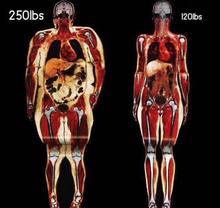 From Dr Robert O Young: When you gain weight you put additional stress on all organs and organ systems including the skeletal system. I reckon hanging this in the kitchen would help with weight loss!