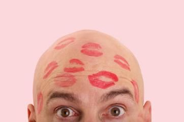 dating a man with shaved head