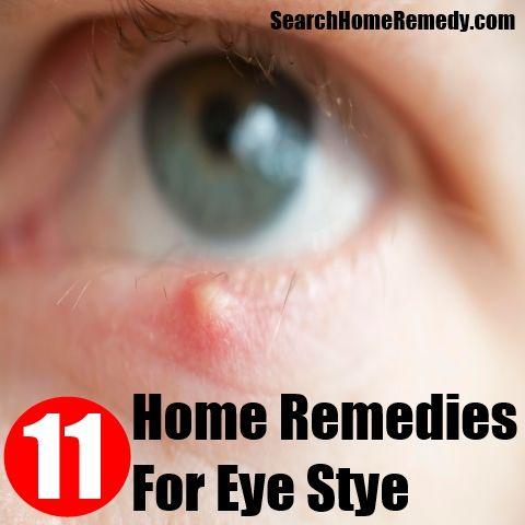 Home Remedies Sensitive Teeth Home Remedies For Stye