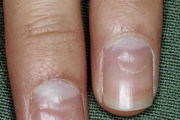 fingernail split down the middle #11