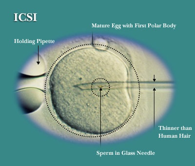 "In IVF ""there are two ways to accomplish fertilization. It can be allowed to occur by natural means, meaning the sperm can be added and the egg-sperm interaction allowed to happen on its own, or it can be assisted, also known as ICSI or intracytoplasmic sperm injection. """