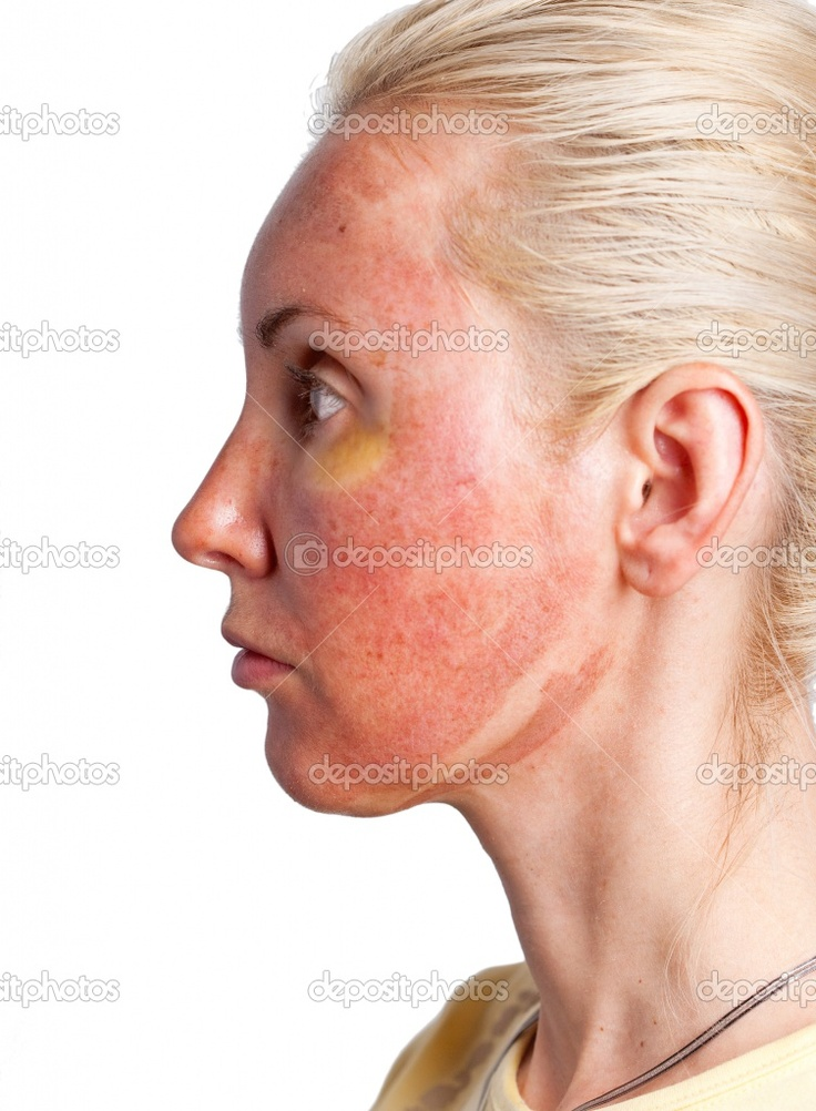 Had facial chemical burns from peel with