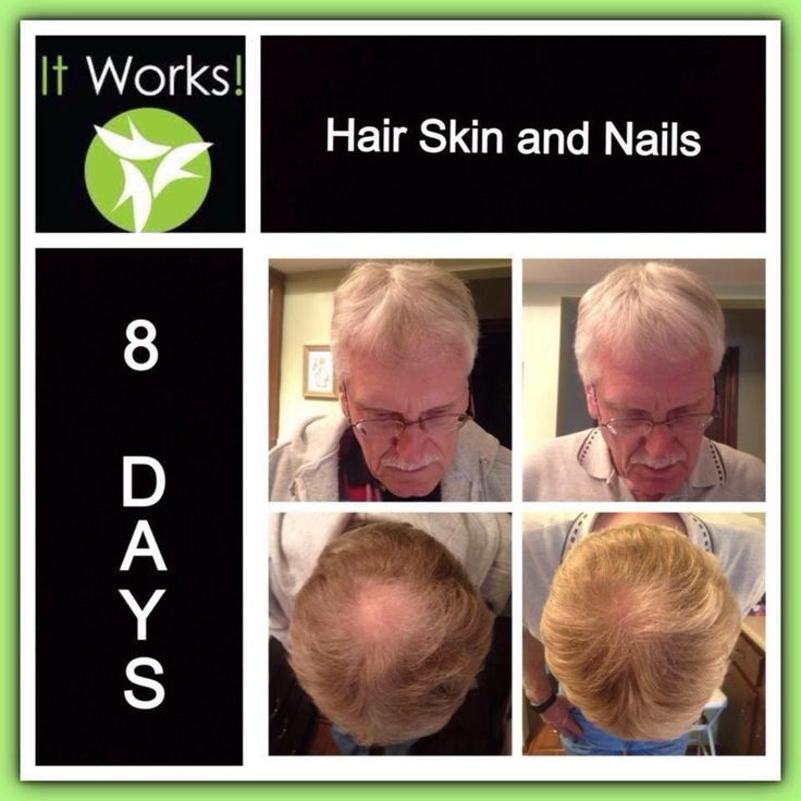 HAIR SKIN NAILS from IT WORKS! Try it for 90 days, at my pricing, and ...
