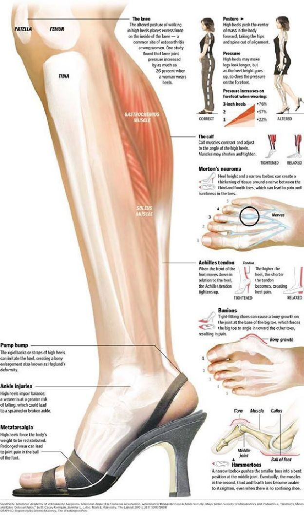 the effects of high heels Dr karen latimer: what are the long-term effects of wearing heels dr robert  conenello: the increased heel height shortens the achilles tendon, which in the.