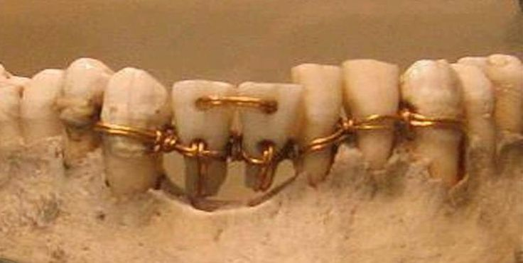 The earliest evidence of ancient dentistry we have is an amazingly detailed dental work on a mummy from ancient Egypt that archaeologists have dated to 2000 BCE