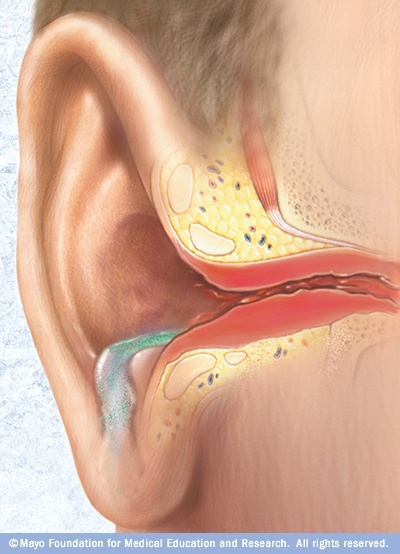Redness of the ear canal, draining fluids and discharge of pus are signs of swimmer's ear (otitis externa). Untreated, the infection can spread to nearby tissue and bone.