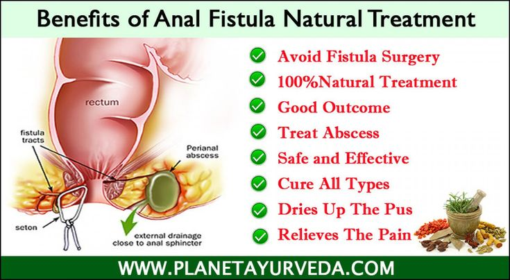 Natural Remedies For Fistula