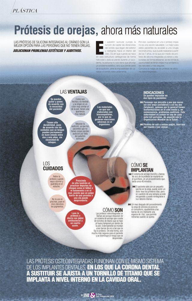 Prótesis de orejas #infografia