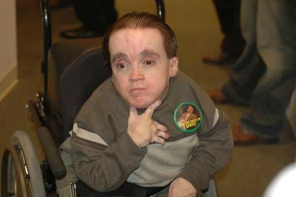 Déconseille! See eric the midget those