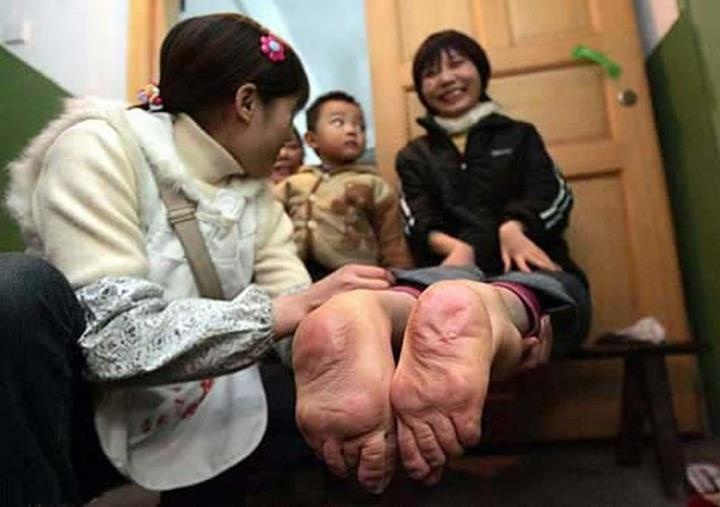 7 Unbelievable Genetic Accidents