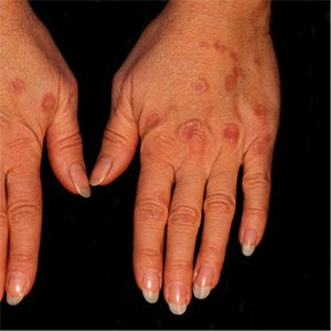 How to Naturally Stop Granuloma Annulare photo