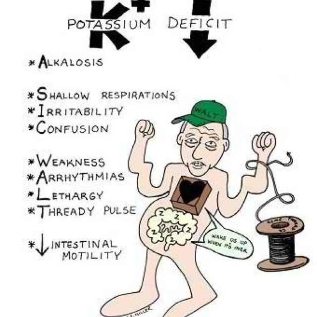 Hypokalemia | Signs and symptoms | Pinterest