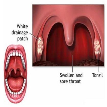 Cure for strep throat tio idea