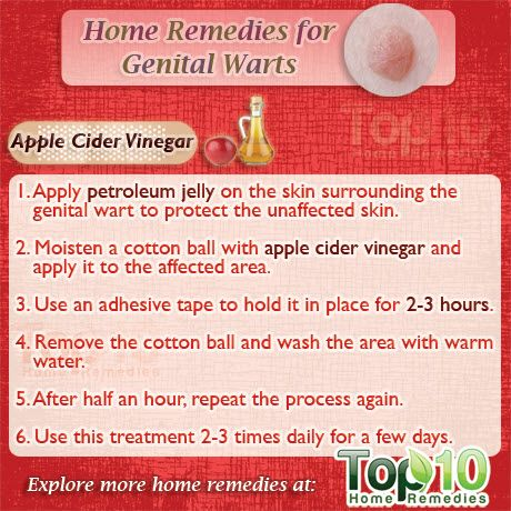 Getting Rid Of Genital Warts Male Home Remedies