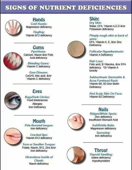 Signs of nutrients deficiency | Vitamins and Food Chart ...