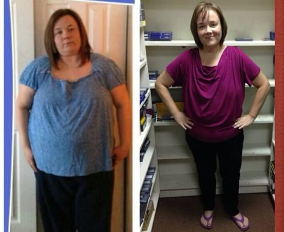 Becky Sawtelle before and after | Weight Loss Progress | Pinterest