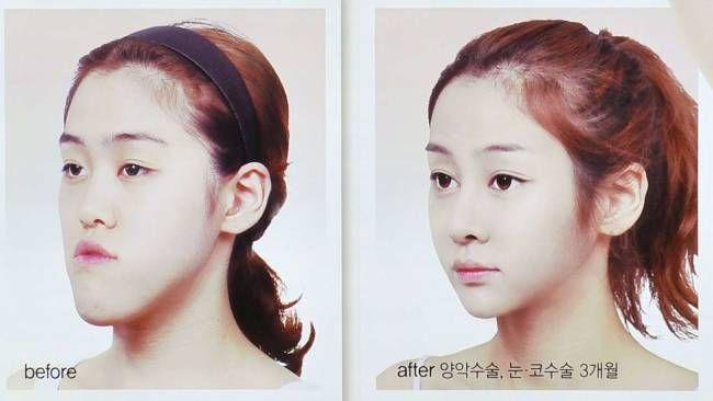 South korean plastic surgery