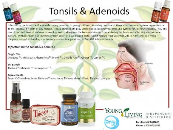 Health Vine Tonsils and Adenoids